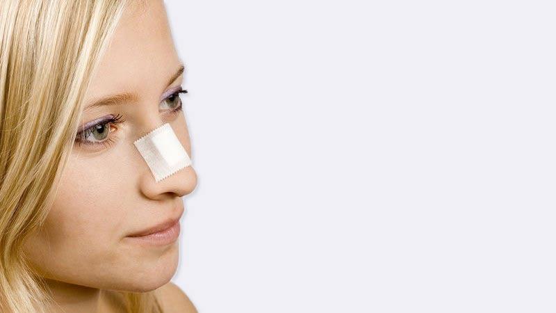 broken-nose-surgery