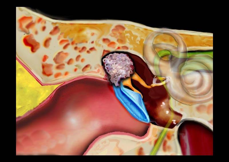 cholesteatoma-ear-surgery-tympanomastoidectomy