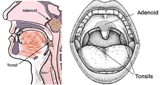 tonsils-adenoid-picture