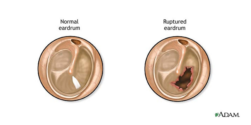 perforated-ear-drum