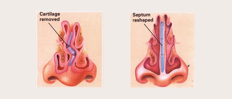 septoplasty-and-turbinate-reduction-surgery