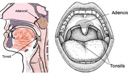 adenoid-removal